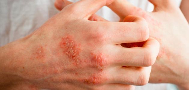 أعراض الإصابة بالأكزيما