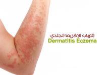 التهاب الاكزيما الجلدي - Dermatitis Eczema