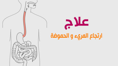 Photo of ارتجاع المريء والحموضة