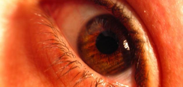 التهاب القرنية Sicca - متلازمة جفاف العينين