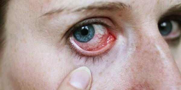 التهاب القزحية