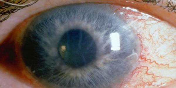 زرق العينين الجلوكوما