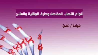 صورة التهاب المفاصل Arthritis