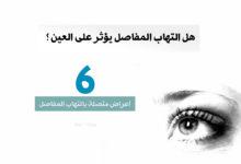 صورة هل التهاب المفاصل يؤثر على العينين ؟