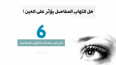 Photo of هل التهاب المفاصل يؤثر على العينين ؟