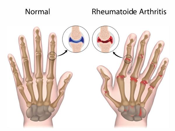 هناك أكثر من مائة نوع مختلف من التهاب المفاصل و الحالات ذات الصلة