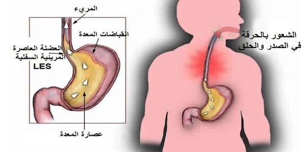 الآثار الجانبية على المعدة
