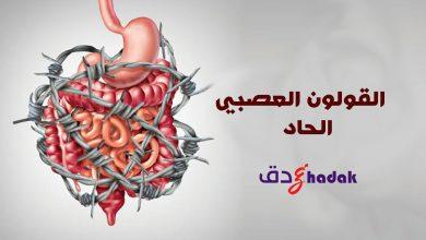 Photo of القولون العصبي الحاد