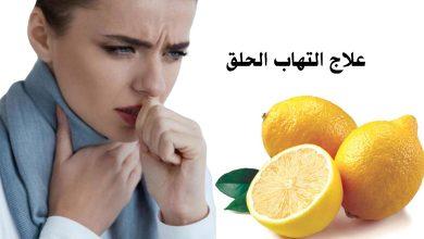 Photo of التهاب الحلق واللوزتين والعلاج بالليمون