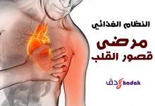Photo of النظام الغذائي الخاص بمرضى قصور القلب