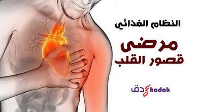 صورة النظام الغذائي الخاص بمرضى قصور القلب