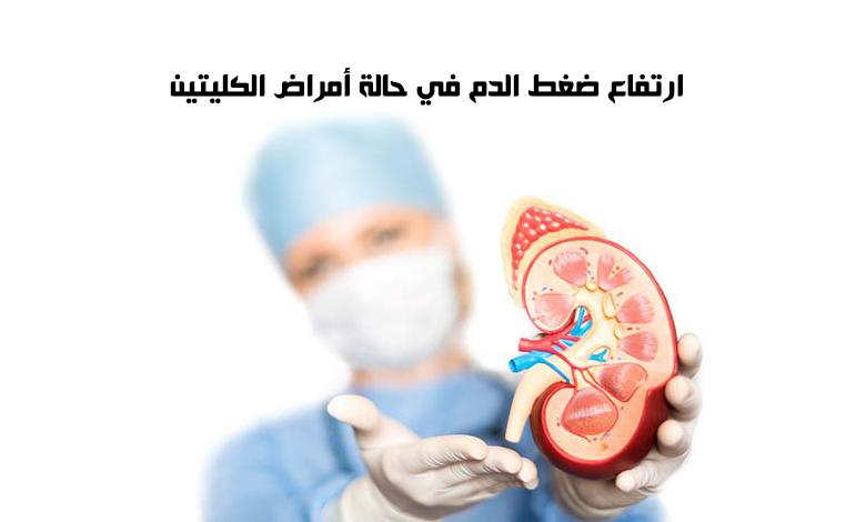 ارتفاع ضغط الدم في حالة أمراض الكليتين