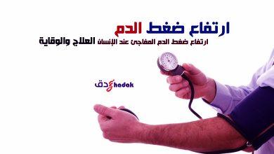 صورة مرض ارتفاعضغط الدم المفاجئ عند الإنسان