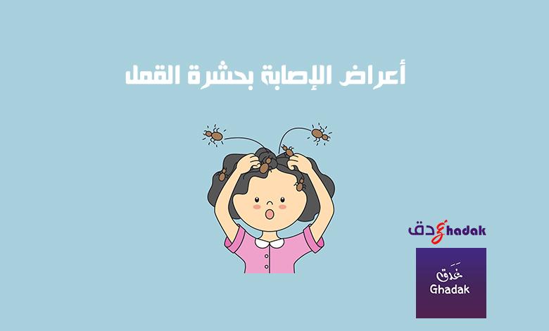 أعراض الإصابة بحشرة القمل
