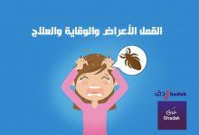 القمل الأعراض والوقاية والعلاج