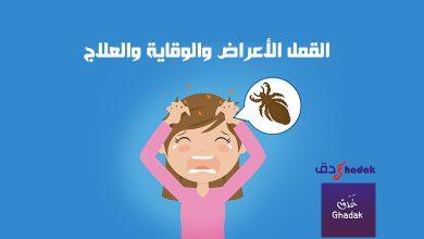 Photo of القمل الأعراض والوقاية والعلاج