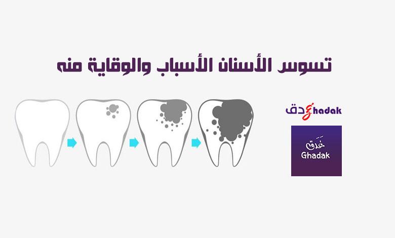 تسوس الأسنان الأسباب والوقاية منه