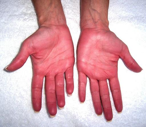 التهاب الأطراف المنجلي
