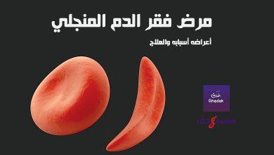 Photo of مرض فقر الدم المنجلي