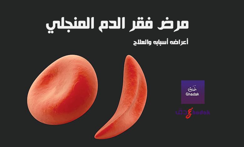 مرض فقر الدم المنجلي