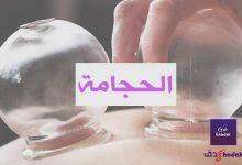Photo of الحجامة وكيفية العلاج بها