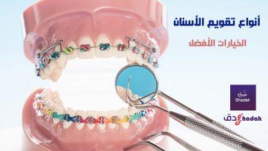 صورة أنواع تقويم الأسنان المتوفرة والخيارات الأفضل