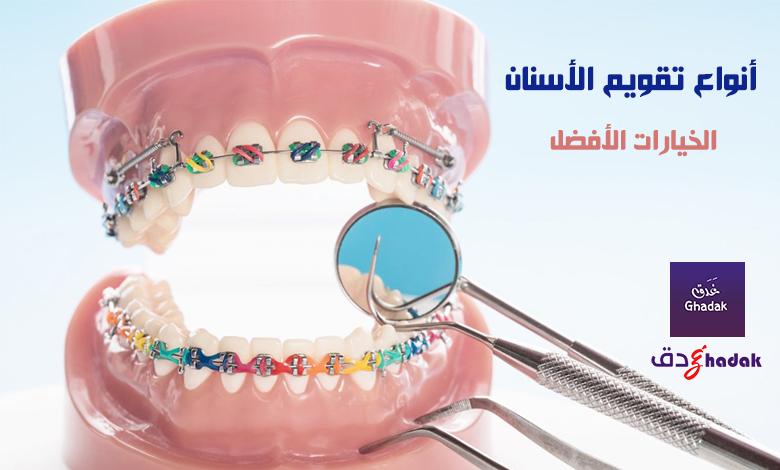 أنواع تقويم الأسنان المتوفرة والخيارات الأفضل