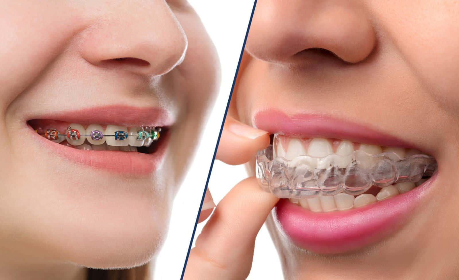 أهمية تقويم الأسنان للأطفال