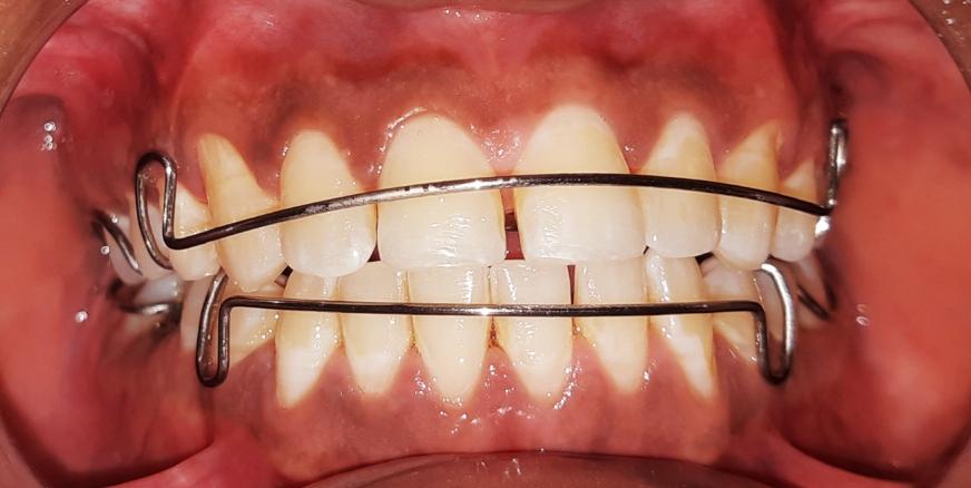 تقويم الأسنان الخاص للكبار