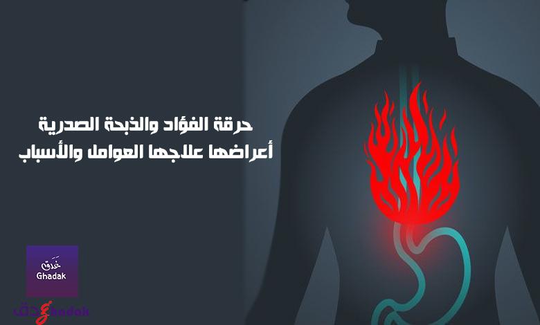 حرقة الفؤاد والذبحة الصدرية أعراضها علاجها العوامل والأسباب