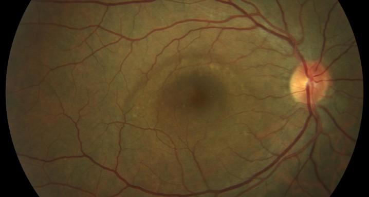 تعريف العين والرؤية - المشيمية