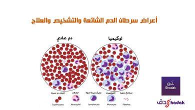صورة أعراض سرطان الدم الشائعة والتشخيص والعلاج
