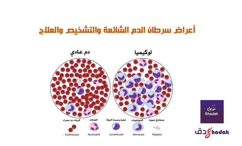 أعراض سرطان الدم الشائعة والتشخيص والعلاج