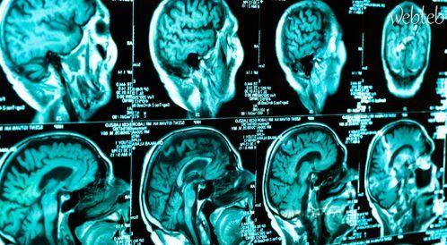 أنواع أورام المخ الأولية