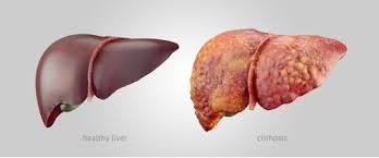تأثيرات الخمر على الكبد