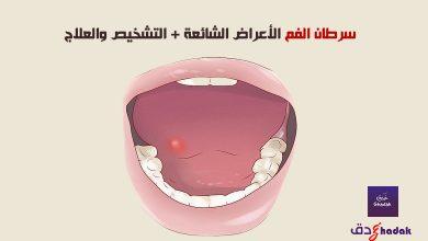 صورة سرطان الفم الأعراض الشائعة + التشخيص والعلاج