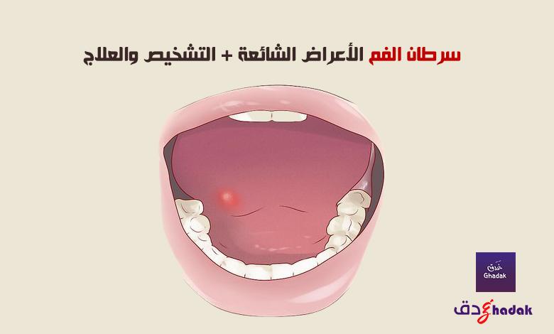 سرطان الفم الأعراض الشائعة + التشخيص والعلاج