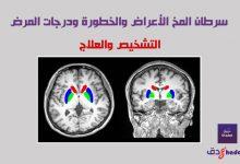 سرطان المخ التشخيص والعلاج
