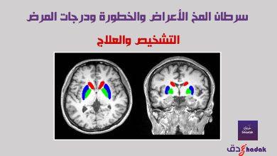 صورة سرطان المخ الأعراض والخطورة ودرجات المرض