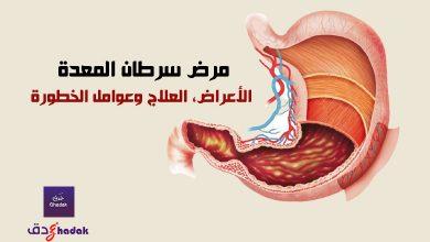 صورة مرض سرطان المعدة – الأعراض، العلاج وعوامل الخطورة