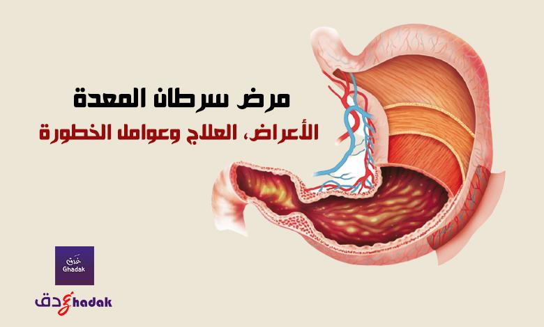مرض سرطان المعدة - الأعراض، العلاج وعوامل الخطورة