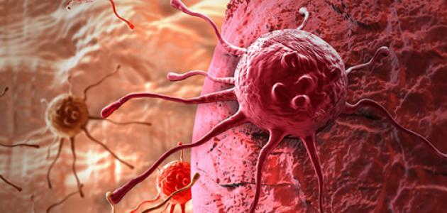 مرض سرطان المعدة