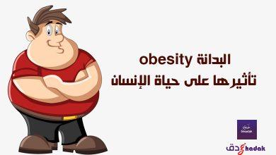 البدانة obesity تأثيرها على حياة الإنسان