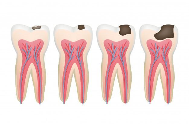 الرعاية الصحية للأسنان