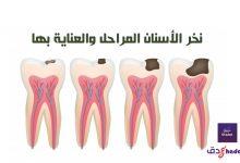 نخر الأسنان المراحل والعناية بها