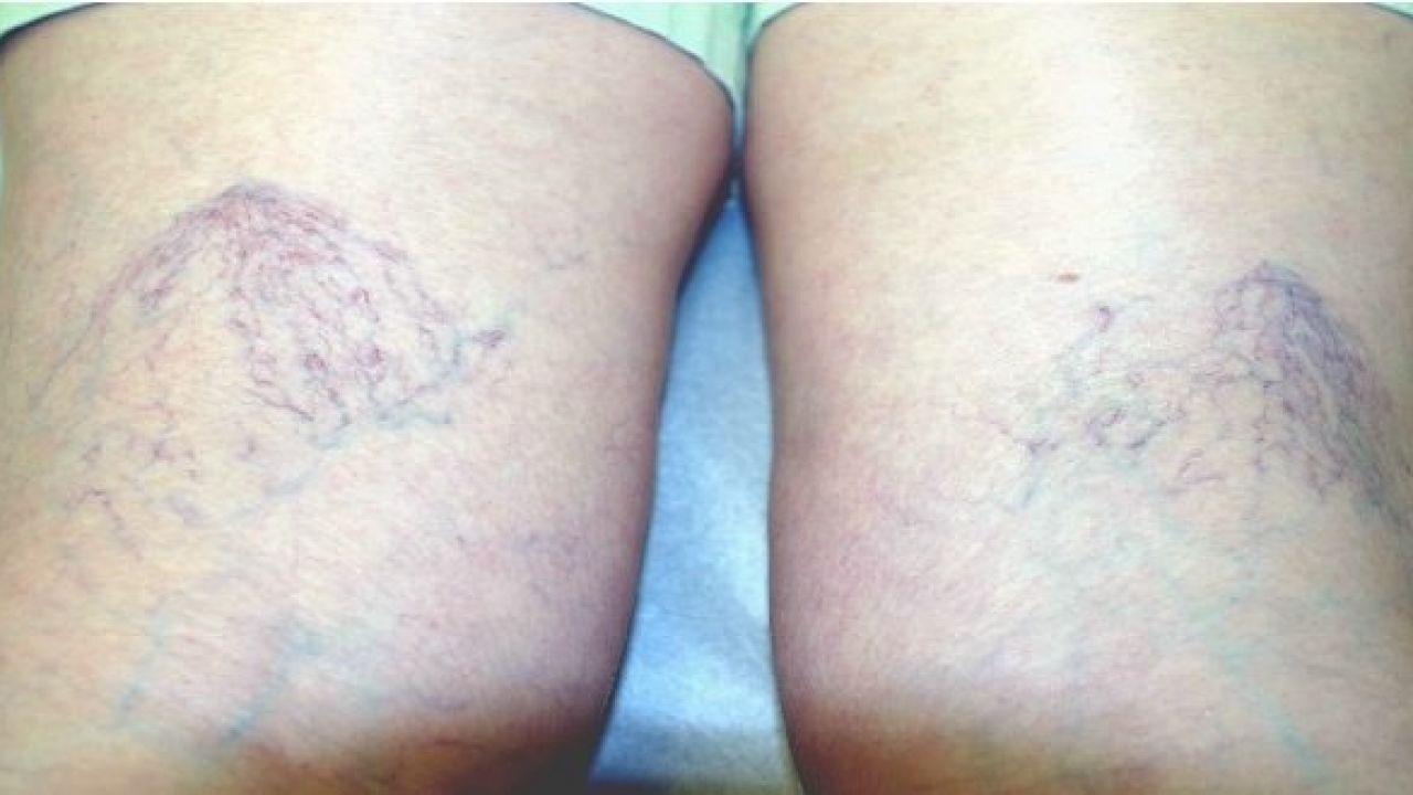 أسباب حدوث دوالي الساقين