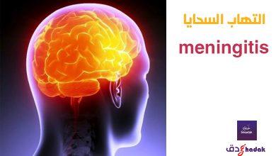 لماذا التهاب السحايا meningitisخطير جدا