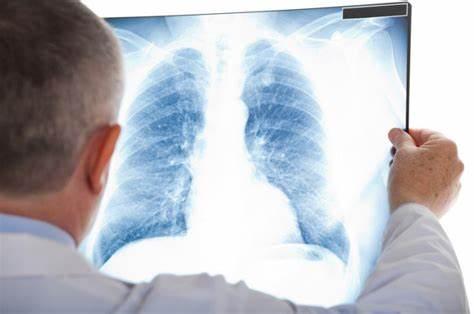 علاج أعراض التهاب الرئة