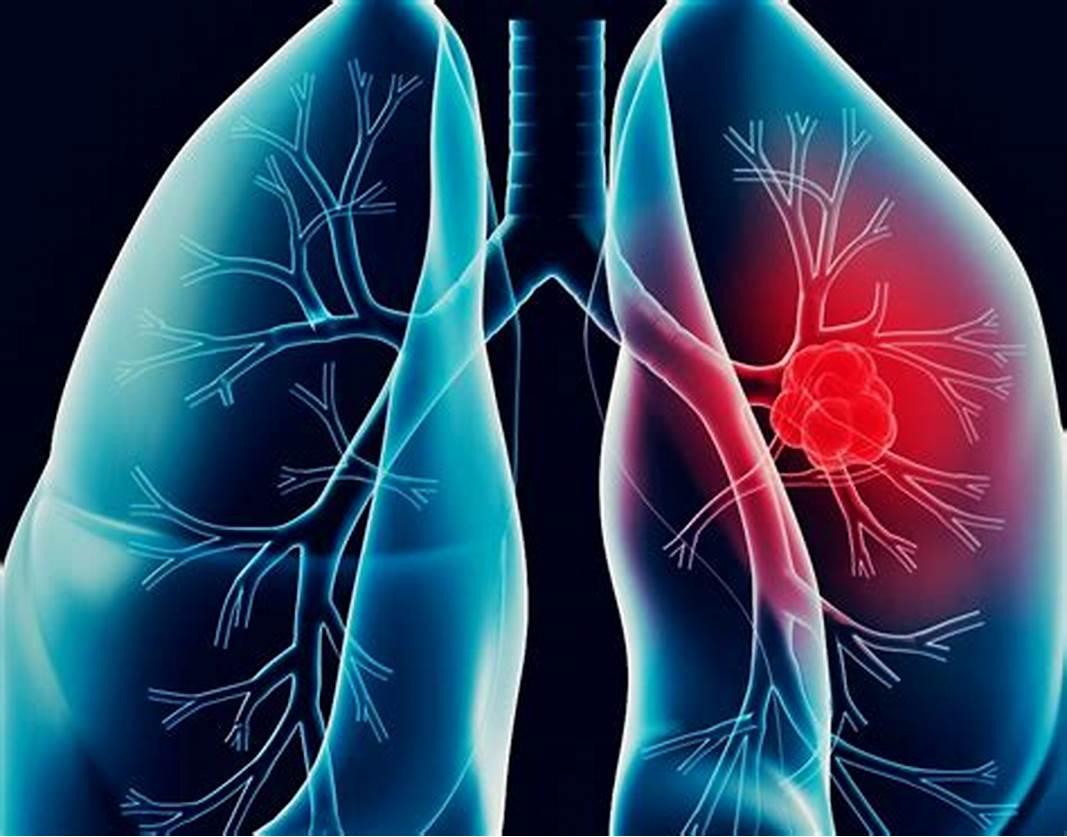 كيف يحدث التهاب الرئة
