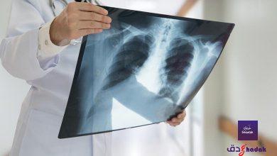لماذا التهاب الرئة pneumonia خطير جداً